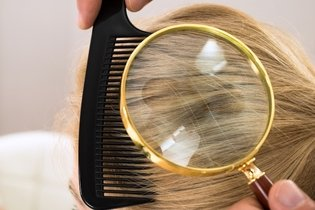 Como Identificar e acabar com Piolhos e Lêndeas