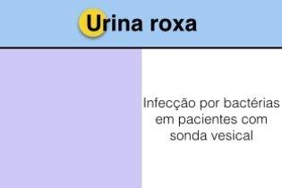 Principais causas da urina roxa