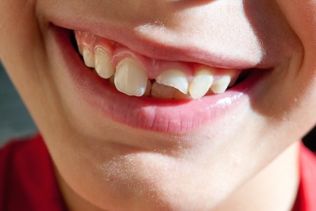 O que fazer quando o dente está quebrado