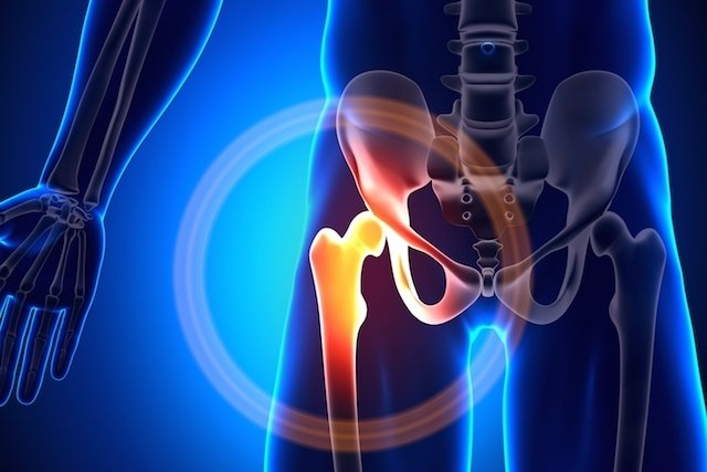 Como identificar e tratar a artrose de quadril