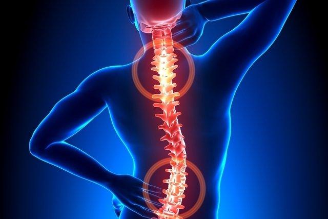 Tratamento para Hérnia de Disco com Fisioterapia