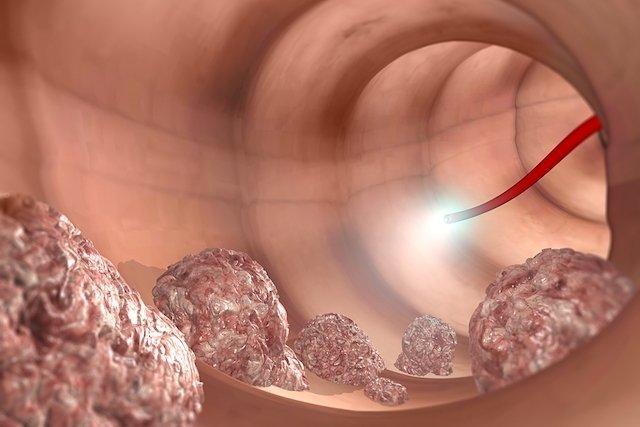 Exames que detectam o câncer de intestino