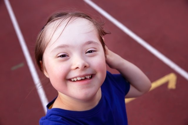 Criança com Síndrome de Down