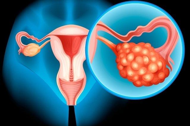 Sintomas de inflamação no ovário