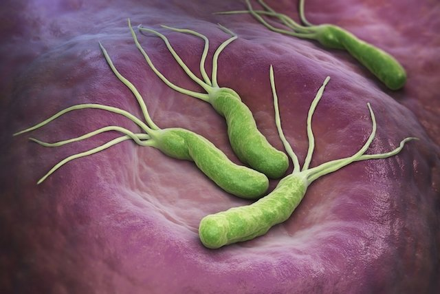 H. Pylori: treatment, transmission and diagnosis