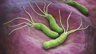 H. Pylori Infection: Main Symptoms and Treatment Options