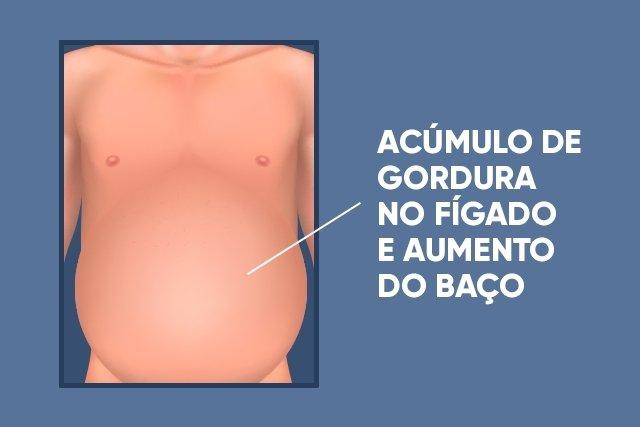 Conheça a Síndrome que diminui a gordura no corpo