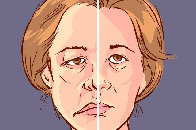 O que é a Paralisia Facial (de Bell) e como tratar