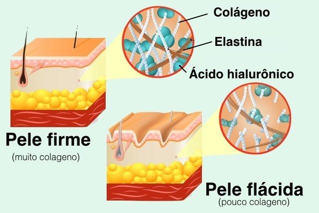 7 dúvidas comuns sobre o Colágeno
