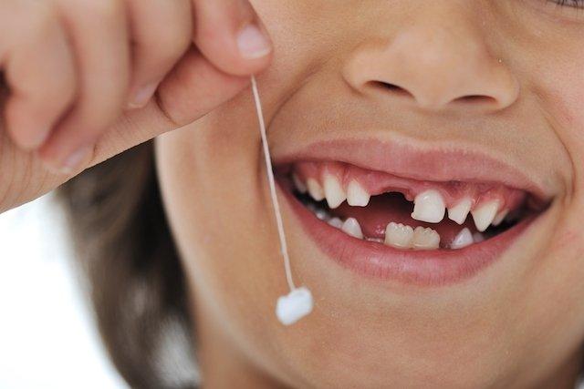 Porque o dente permanente pode demorar a nascer