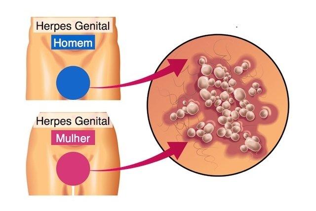 Aparência das bolhas ou feridas causadas pelo herpes genital no homem e na mulher