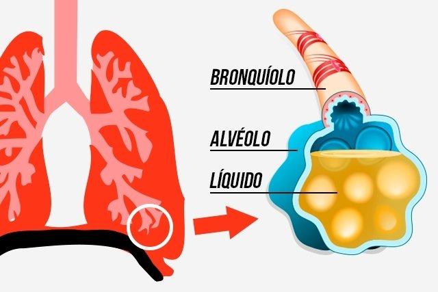 O que pode causar água no pulmão e como tratar