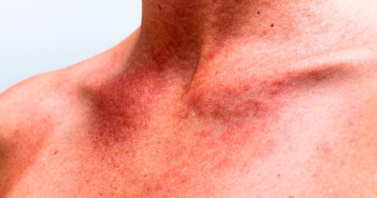 reação animosidad na pele carry out rosto