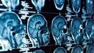 Encefalite autoimune: o que é, causas e tratamento