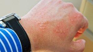 14 doenças que causam manchas vermelhas na pele