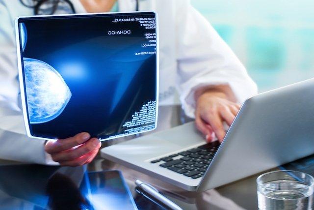 Como interpretar os Resultados da Mamografia