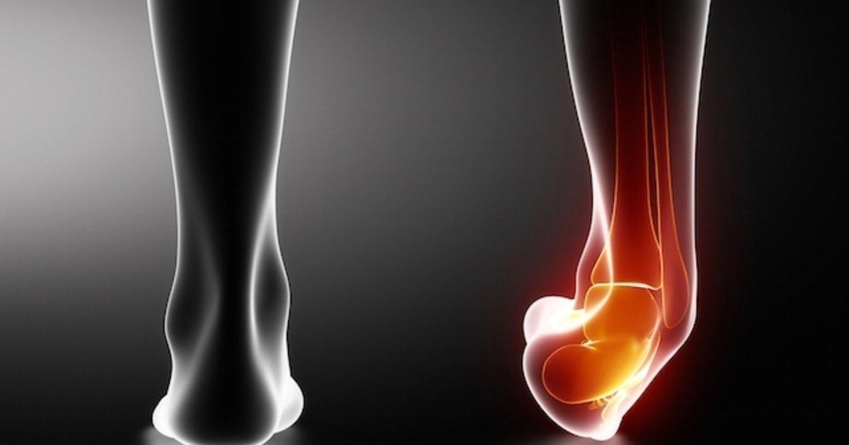 Posição dos pés na caminhada e torção de tornozelo