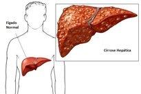 Sintomas de cirrose hepática