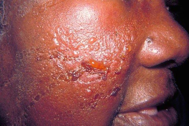 Erisipela Bolhosa - Sintomas e Tratamento