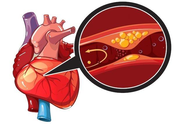 Isquemia cardíaca: o que é, principais sintomas e tratamento