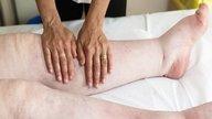 Inchaço nas Pernas - Causas e Tratamentos