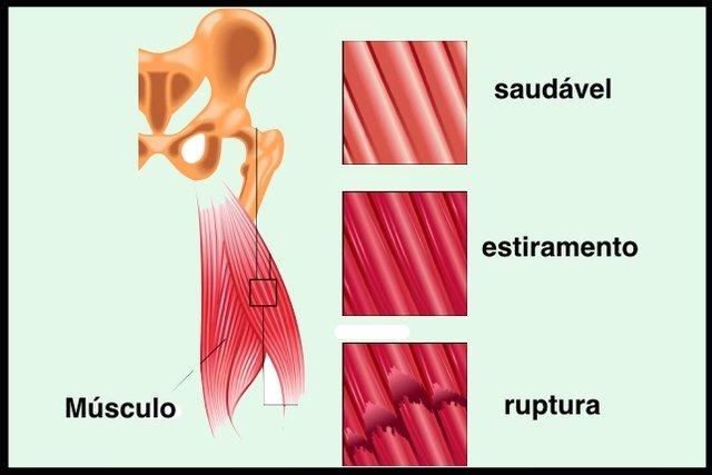 diagrama de dolor muscular en la ingle