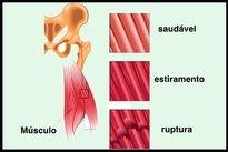 Dura una distensión muscular cuanto