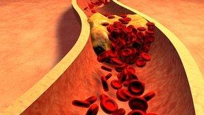 Qué es la trombofilia y cómo se realiza el tratamiento