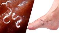 ¿Cómo identificar si es Larva Migrans cutáneo?