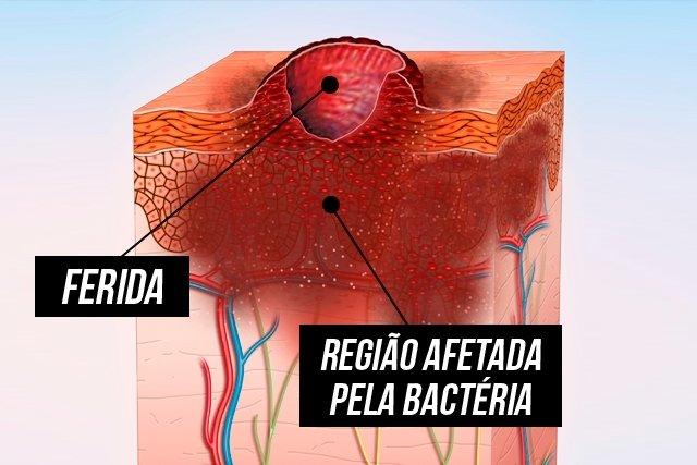 Como identificar e tratar a úlcera de buruli