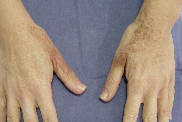 Como tirar manchas da pele