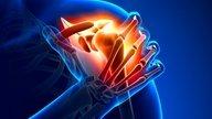 Opções de Tratamentos para Bursite