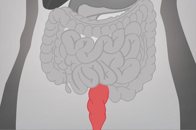 Infecções intestinais sexualmente transmissíveis