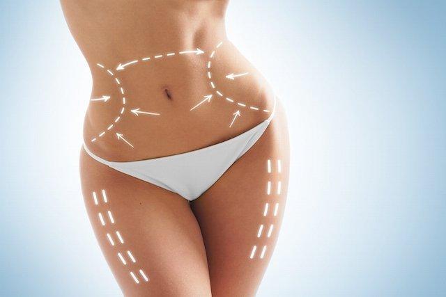 Quando é indicada a cirurgia plástica após bariátrica