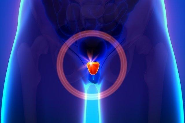 Próstata aumentada: causas, sintomas e tratamento