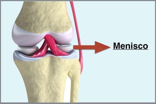 Lesão No Menisco Sintomas E Tratamento Tua Saúde