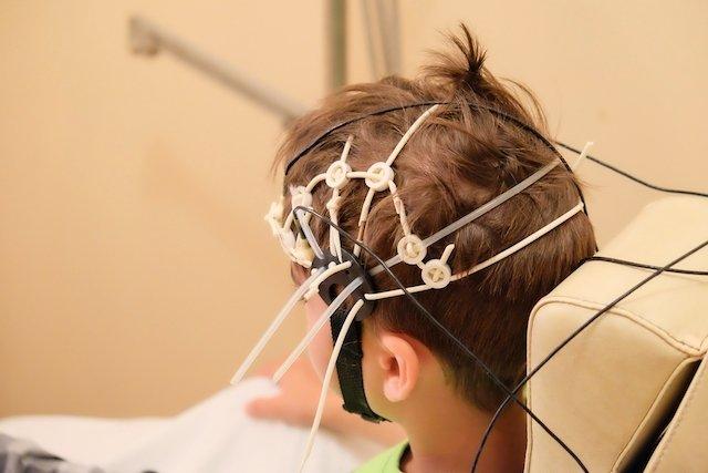O que é e como funciona o neurofeedback