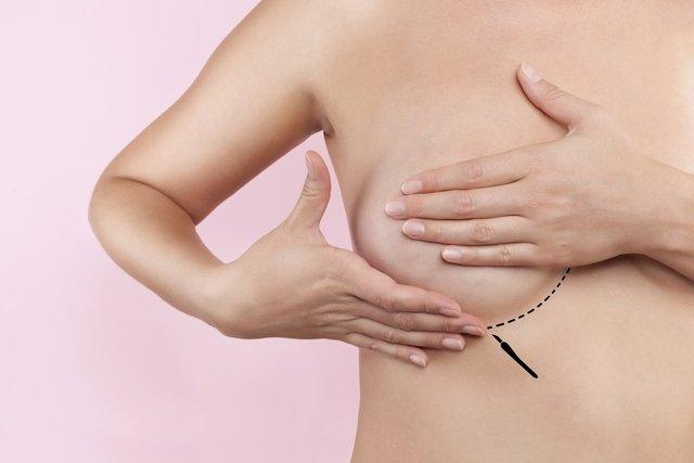 4 principais opções de cirurgia plástica na mama