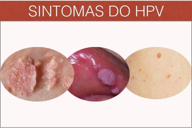 Pomada de Barbatimão pode ser a cura do HPV