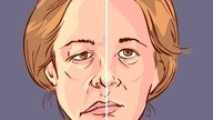 Bell's Palsy: Symptoms, Causes & Treatment Options
