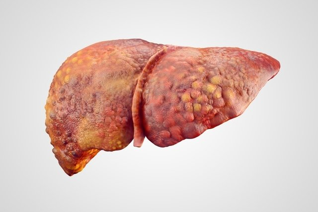 8 principais sintomas de gordura no fígado