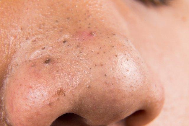 5 passos para remover cravos do nariz