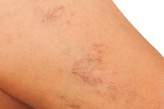 Tratamento para secar Vasinhos nas pernas