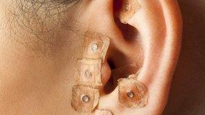 O que é acupuntura e para que serve
