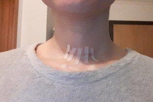 3 dias depois da cirurgia