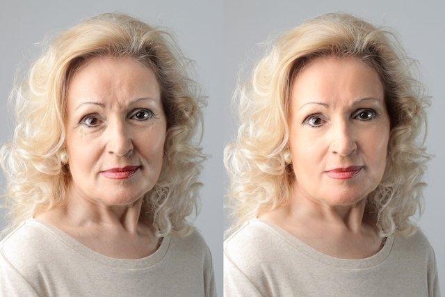 Luz Pulsada- Elimina manchas en la piel y vellos no deseados