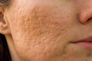 Enfrente o barro de pacote da pele de cara de problema