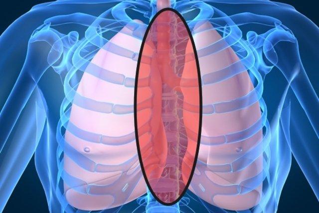 Localização do câncer de mediastino