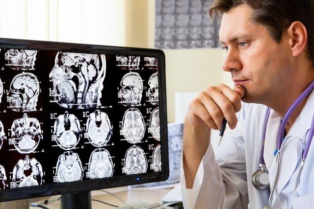 Como fazer a Dieta Cetogênica para epilepsia