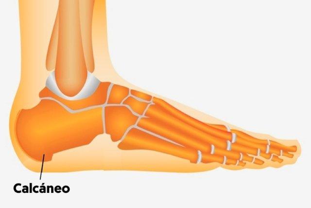 Como curar dolor de talon de pie
